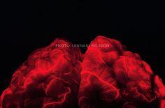 Blood vessels in the brain. (Nilsson)