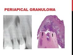 kronik periapikal periodontitis periapikal granülom