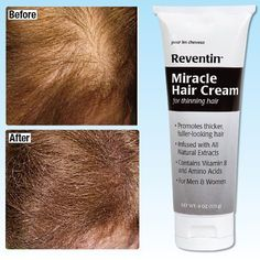 Reventin Miracle Hair Cream by QCI Direct, Inc.. $19.99. Thick, Full Hair in Just Two Weeks!. Natural extract enriched formula quickly delivers valuable vitamins and nutrients to the hair follicle, promoting growth while protecting and conditioning the scalp. Simply massage in twice a day. For men and women with thinning hair. 4 oz.