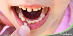 Importancia de cuidar los dientes de leche