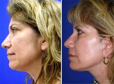 Win the war against wilting face and neck skin and wrinkles and folds via face aerobics exercises. At home DIY organic facelift principles to look years younger applying face acupressure and face yoga workouts Face Lift Exercises, Double Chin Exercises, Workout Regimen, Toning Workouts, Workout Routines, Double Chin Reduction, Facelift Without Surgery, Facial Yoga, Aerobics Workout
