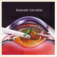 İstanbul Retina - Katarakt
