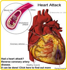 What Causes A Heart Attack? Blood clots are the biggest cause of most heart attacks. Coronary arteries get blocked, these blood vessels bring blood and oxygen to the heart muscle. Heart Disease Symptoms, Heart Attack Symptoms, Health And Wellness, Health Tips, Health Care, Health Benefits, True Health, Health Matters, Wellness Tips