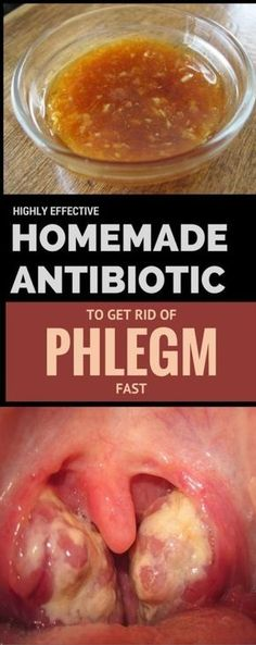 Highly Effective Homemade Antibiotic to Get Rid of Phlegm Fast
