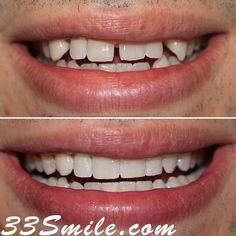 Invisalign can work wonders in the right hands! Dr. Moore does cosmetic shaping on the teeth at no charge($788 value) as an added bonus to doing your Invisalign here! #drjamsmiles #33Smile . . All photos and video of patients are of our actual patients. All media is the of Cosmetic Dental Associates. Any use of media contained herein is prohibited without written consent. . . #satx #satxdentist #dentistry #goals #smile #teeth #instagoals #transformationtuesday #beforeandafter #whiteteeth… Insta Goals, Dental Cosmetics, Smile Teeth, Dental Procedures, Cosmetic Dentistry, Transformation Tuesday, Beautiful Smile, Hands, Photo And Video