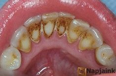Így távolíthatjuk el a fogkövet, anélkül, hogy fogorvoshoz mennénk! | Napjaink