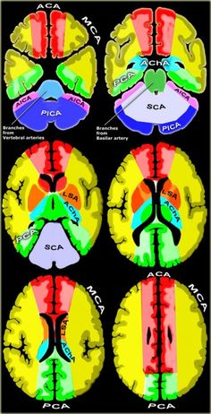 Brain Ischemia - Vascular Territories Clinical viewing of radiological results of vascular insults. Good primer for learning the irrigation territories. Brain Anatomy, Medical Anatomy, Anatomy And Physiology, Mri Brain, Brain Stem, Radiology Imaging, Nuclear Medicine, Brain Health, Nursing