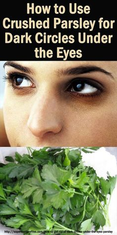 Here's 2 different ways to use parsley for dark circles under the eyes and reduce eyebag puffiness after a big night - effective and easy to make up at home superfoodprofiles...