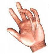Picture of a Dupuytren's contracture