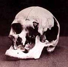 Andrew's skull