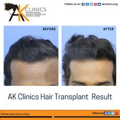 Receding angles and broad forehead is usually the first sign of Male Pattern Baldness...Hair transplant can help to lower the frontal hairline and fill up the deep angles.. #HairTransplantResult #Hairloss #Hairrestoration #HairCare #FUEIndia #beforeandafter #Hairgoals #Hairtreatment #HairLossForum #Regrowhair #Daysurgery #hairreplacement #HairTransplantPatient #HairGrowth #Hairline #HairTransplantClinics #AkClinics #Delhi #Ludhiana #Bangalore #Hyderabad Hair Transplant In India, Hair Transplant Results, Hair Transplant Surgery, Best Hair Transplant, Bald Hair, Male Pattern Baldness, Regrow Hair, Hair Restoration, About Hair