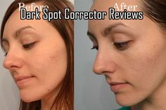 Dark Spot Corrector Reviews #DarkSpotReviews
