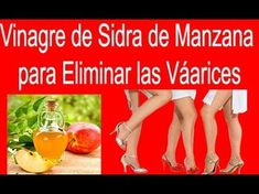 Vinagre De Sidra De Manzana Para Eliminar Las Várices | Remedios Caseros Para Eliminar Las Varices