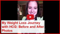 My Weight Loss Journey with HCG: Before and After Photos. Click here --> http://besthealthlore.com/weight-loss/my-weight-loss-journey-with-hcg/?socifunnel=15381