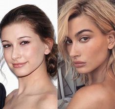 Hailey Bieber – Care – Skin care , beauty ideas and skin care tips Beauty Tips For Men, Beauty Tips For Glowing Skin, Beauty Hacks, Beauty Ideas, Plastic Surgery Photos, Celebrity Plastic Surgery, Justin Bieber, Facial Aesthetics, Younger Looking Skin