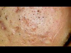 Satisfying Blackheads Removal, Acne Treatment Video with Sleep & Relaxing Music // ASMR 9 Deep Blackheads, Pimple Popping, Smooth Face, Blackhead Remover, Acne Skin, Acne Treatment, Ethnic Recipes, Youtube, Sleep