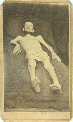 CDV Emaciated Union Civil War Prisoner of War