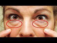 Cómo quitar las bolsas de los ojos en 20 minutos, ¡Los resultados te sorprenderán! - YouTube