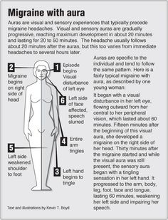 Natural Headache Remedies Information graphic about Migraine with aura with links to acupressure for related symptoms Complex Migraine, Migraine Aura, Migraine Relief, Pain Relief, Migraine Diet, Ocular Migraine, Acupressure Treatment, Hemiplegic Migraine, Home Remedies