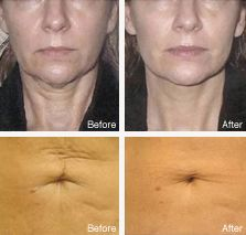 Titan-Skin Tightening - An Infrared light used to heat the dermis and stimulate collagen production, resulting in tighter skin without surgery or recovery time. The newest category in skin fitness!