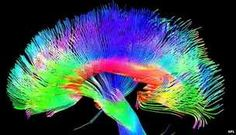 Coloured brain pathways: artists' brains are more developed in certain areas