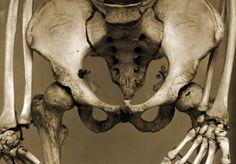 Old human pelvis bone and bolts A4 framed photo print. £17.00, via Etsy.