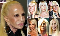 How Donatella Versace transformed herself into a human waxwork with Botox, impla. - - How Donatella Versace transformed herself into a human waxwork with Botox, implants and laser resurfacing <! Gianni Versace, Versace Versace, Bad Plastic Surgeries, Plastic Surgery Gone Wrong, Bad Celebrity Plastic Surgery, Botox Before And After, Celebrities Before And After, Donatella Versace Plastic Surgery, Marilyn Monroe Plastic Surgery
