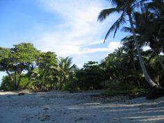 Santa Teresa, North Puntarenas Costa Rica es muy relajante. Usted puede relajarse en la playa y el surf.