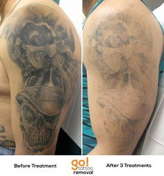 All grey wash tattoo seeing great progress after two laser for Laser tattoo removal pictures after 1 treatment