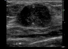 Abnormal breast ultrasound