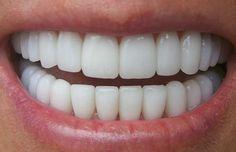 Ученые изКоролевского колледжа Лондона нашли революционный способ лечить зубы. Оказывается, лекарство, купирующее некоторые симптомы болезни Альцгеймера, способно заставить зубы регенерировать. Зубы человека почти невосстанавливаются после повреждений. Маленькие участки случайно поврежденного дентина— второго после эмали слоя— иногда регенерируют, ноэтого недостаточно, чтобы заполнить большую полость взубе, разрушенном травмой или кариесом. Поэтому стоматологам приходится заполнять…