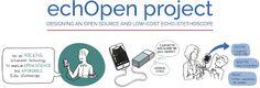 SCimPULSE foundation: echOpen – the development continues
