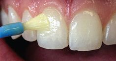 Remineralize & Regrow Tooth Enamel At Home