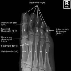 Radiographic Anatomy - Toes Oblique