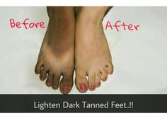 Remove Sun Tan from Your Feet || Lighten Dark Tanned Feet || Sayantani S...