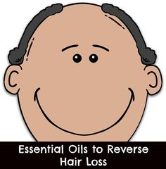 Natural Remedies For Hair Growth Essential oils for hair loss. How one blend of specific oils has been scientifically studied, and found to aid hair regrowth. - Some of the best essential oils for hair loss include lavender, thyme, rosemary and cedarwood. Young Living, Reverse Hair Loss, Natural Hair Loss Treatment, Natural Treatments, Oil For Hair Loss, Male Pattern Baldness, Essential Oils For Hair, Hair Loss Remedies, Prevent Hair Loss