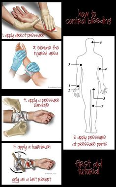 How To Stop Bleeding | The Ultimate Emergency First Aid Kit List And Tips #survivallife www.survivallife.com