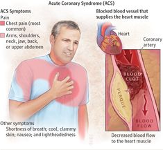 Acute Coronary Syndrome. JAMA. 2015;314(18):1990. doi:10.1001/jama.2015.12743.