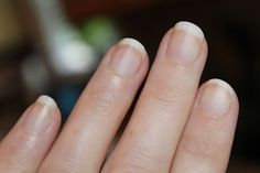 White nails...1 tablespoon hydrogen peroxide  2 tablespoons baking soda    1. Mix the peroxide and baking soda into a paste.    2. Let the paste sit on your nails for 5 minutes, then rinse.    Good to know for when you wea dark nail polish for a while