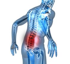 Alivios naturales para la Fibromialgia