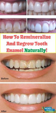 Natural Teeth Whitening Remedies How To Remineralize And Regrow Tooth Enamel Naturally! Home Teeth Whitening Kit, Teeth Whitening Remedies, Natural Teeth Whitening, Teath Whitening, Natural Teething Remedies, Natural Acne Remedies, Natural Cures, Tooth Enamel, Teeth Health