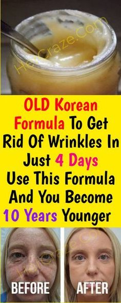 Old korean Formula to Get Rid Of Wrinkles In Just 7 Days Use This Formula and Yo. Old korean Formula to Get Rid Of Wrinkles In Just 7 Days Use This Formula and You Become 10 Years Younger – HerCraze Younger Skin, Facial Cream, Anti Wrinkle, Wrinkle Creams, How To Stay Healthy, 10 Years, Health Tips, Health Care, Skin Care