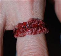 Von Erickson Labs - Chopped Flesh Ring #1
