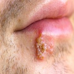 how to get rid of cold sores outside the mouth