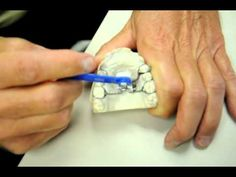 Dr buddy and the rapid palatal expander rpe part 1 dr buddy and the rapid palatal expander rpe part 2 mozeypictures Gallery