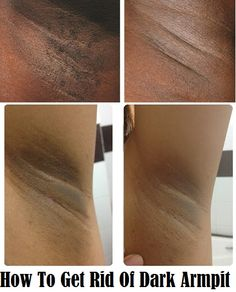 How To Get Rid Of Dark Armpit