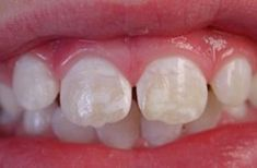 Vital Health, Inc. Provides Tips on How to Identify Celiac Disease in Young Children through Dental Enamel Defects, Malformed, and Extreme Decayed Teeth