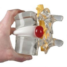 This enlarged model of two lumbar vertebrae has the opportunity to simulate a protruding lateral intervertebral disc hernia. Intervertebral Disc, Disk Herniation, Spine Pain, Spinal Nerve, Degenerative Disc Disease, Spinal Column, How To Lean Out, Back Pain Relief, Low Back Pain