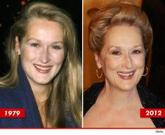 Meryl Streep: Good Genes or Good Docs? Meryl Streep, Celebrities Before And After, Celebrities Then And Now, Celebrities Exposed, Hollywood Celebrities, Actor Studio, Good Genes, Stars Then And Now, Matthew Mcconaughey