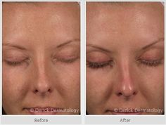 Before and After #Latisse | Eyelash Growth | Eye Lash Growth | Long EyeLashes | Long Eye Lashes